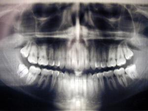 Man lai pārliecinātos vai vis... Autors: Rocky3D Lieks zobs.