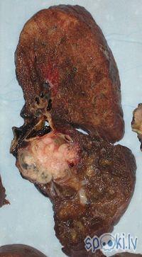 plaušu vēzis Autors: karote Vēzis