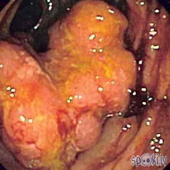 resnās zarnas vēzis Autors: karote Vēzis