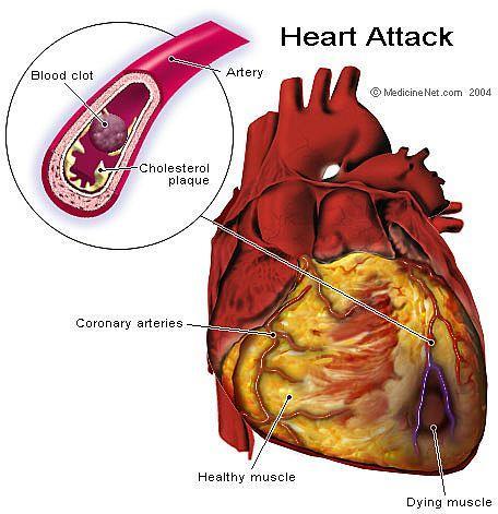 Sirdstrika visbiežāk ir... Autors: Moonwalker Fakti par sirdi