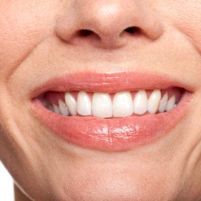 Zobu zaudējums Smēķētājiem ir... Autors: babavija Smēķēšanas ietekme uz izskatu.
