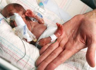 Mazākais bērniņš pasaulēviņu... Autors: PRESS Pasaules mazākās...