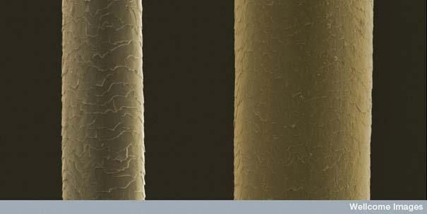 Cilvēka mati Autors: MILFS Aplūkojot pasauli ar mikroskopu