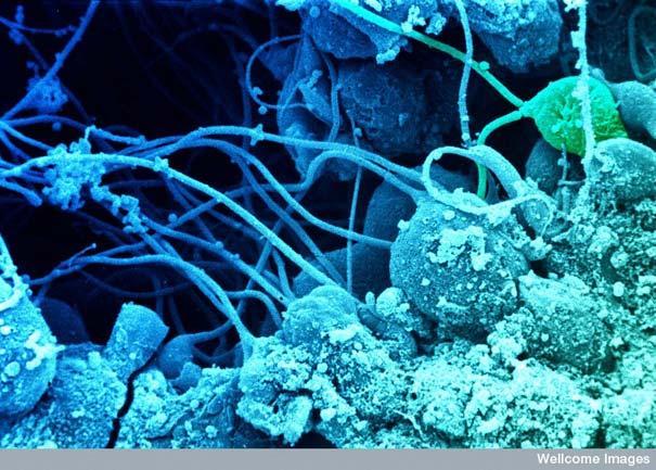 Spermatozīdu attīstība... Autors: MILFS Aplūkojot pasauli ar mikroskopu