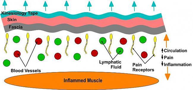 Uzlabotā asins plūsma uzlabo... Autors: kirdikk Kā teips noņem sāpes?