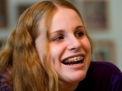 Taču šobrīd viņai ir 21 gads... Autors: charity Meitene, kura uzveica trakumsērgu !