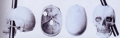 Tomēr no iepriekšējā Geidža... Autors: Edgarinshs Smadzenes caururba stienis