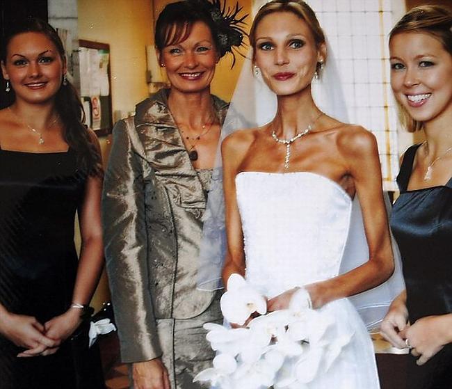 PACEMAKER BELFAST ... Autors: ORGAZMO es pārvarēju anoreksiju.