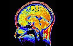 Cilvēka smadzenes dienas laikā... Autors: BuchxxL Dažādi fakti.