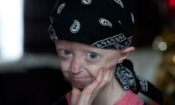 Kā apgalvo ārsti Brūkai nav... Autors: Pizhix Medicīnas mīkla 20-gadīga meitene bērna ādā.