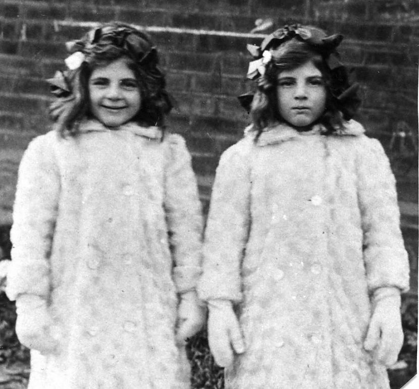 Katram dvīnim attīstās sava... Autors: ORGAZMO Fakti par dvīņiem.