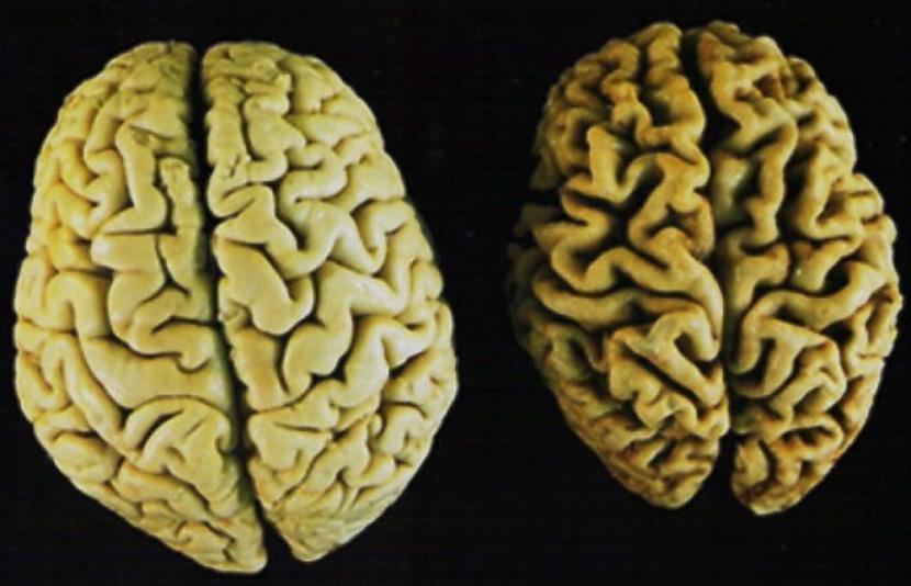 Līdz ar to ka cilvēks paliek... Autors: Aurelius Kā rodas «bezfilma» un citi fakti par smadzenēm