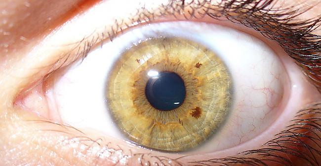 Acss ir tikpat unikālas kā... Autors: Tourist Unikālās acis