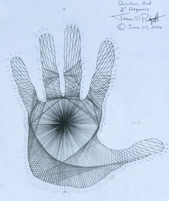 Džeisons Padgets ir vien no... Autors: Lestets Pēc smadzeņu traumas kļuva par ģēniju...
