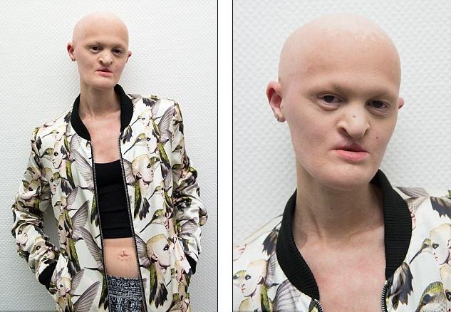 Melānija kas dzimusi... Autors: me guusta Modele bez zobiem un matiem vēlas izsisties modes industrijā. Viņai tas izdodas.