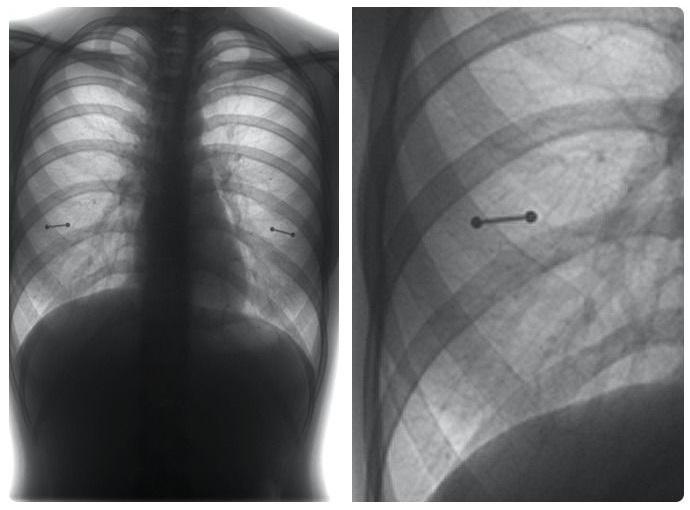 Mamma laquoTev atnāca rentgens... Autors: The Diāna 18 forši rentgeni redzesloka paplašināšanai
