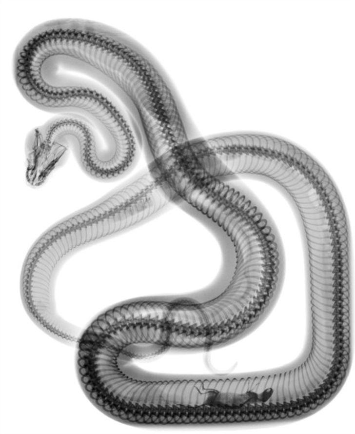 Rentgens čūskai kura nesen... Autors: The Diāna 18 forši rentgeni redzesloka paplašināšanai