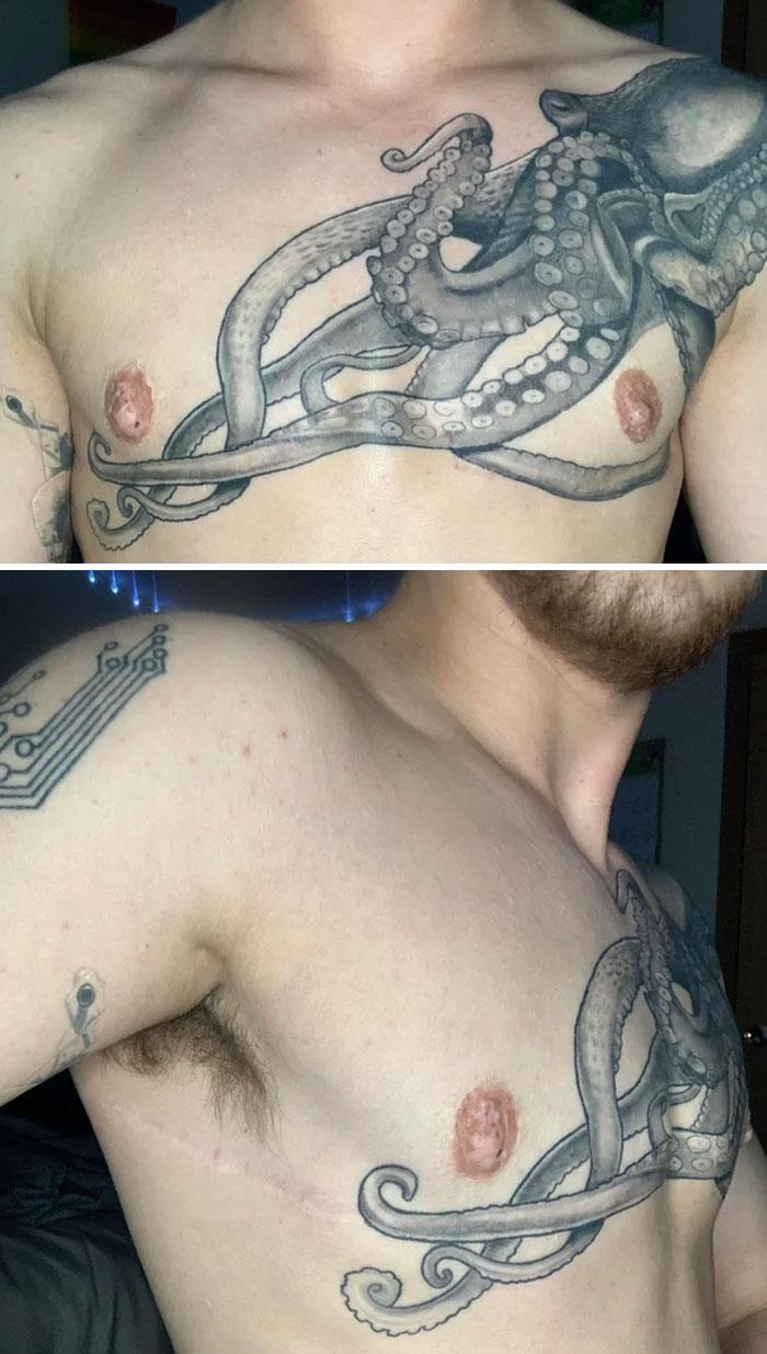 Autors: matilde 48 cilvēki, kuri izvēlējās ar tetovējumu paslēpt savas rētas vai dzimumzīmes