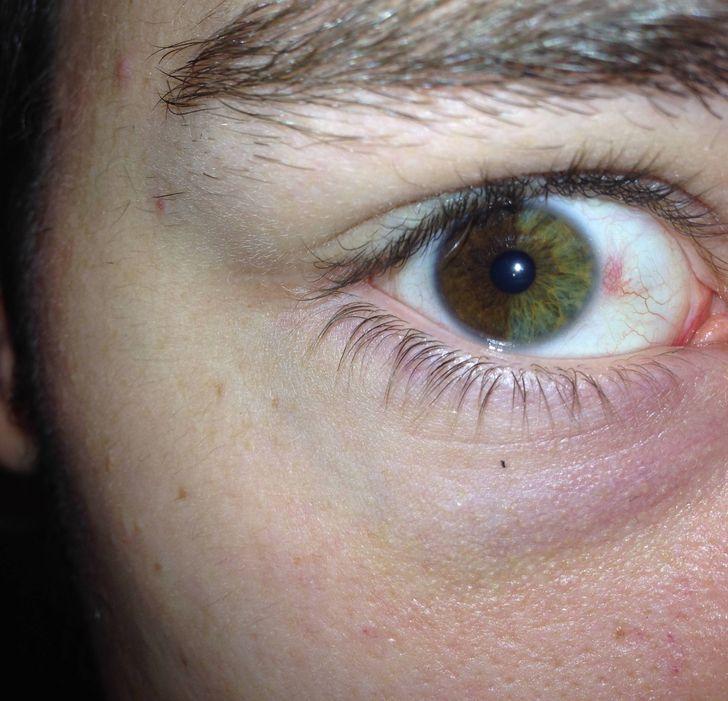 laquoMana labā acs ir sadalīta... Autors: The Diāna 16 reizes, kad cilvēki parādīja savus neparastos dabas dotumus
